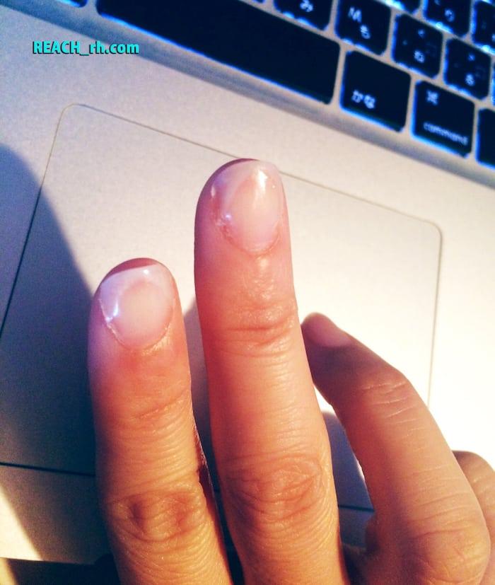 nail after_01